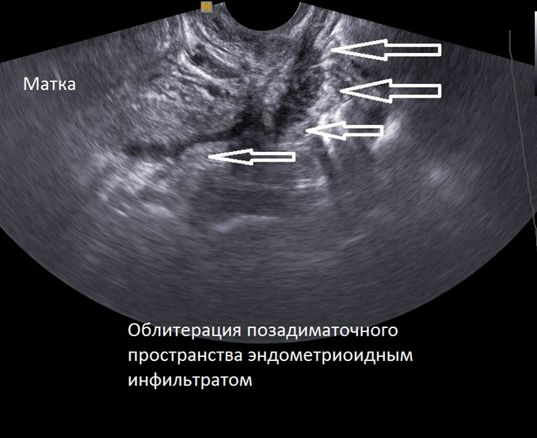 Эндометриоз мягких тканей
